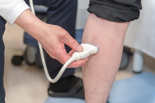 下肢静脈瘤の検査
